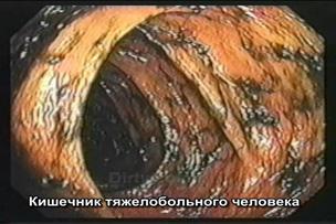 Камни в кишечнике фото